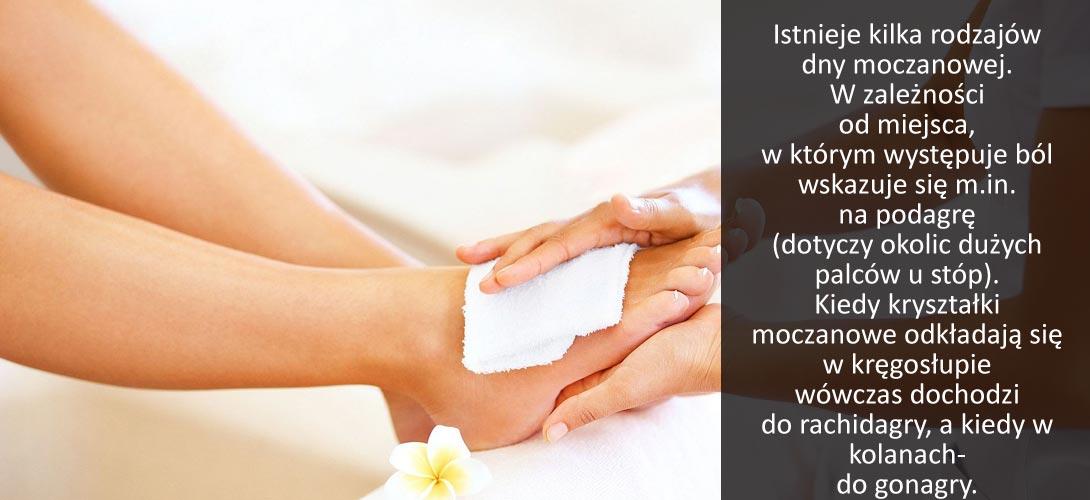 stopy Dna moczanowa - skąd się bierze i jak ją leczyć?